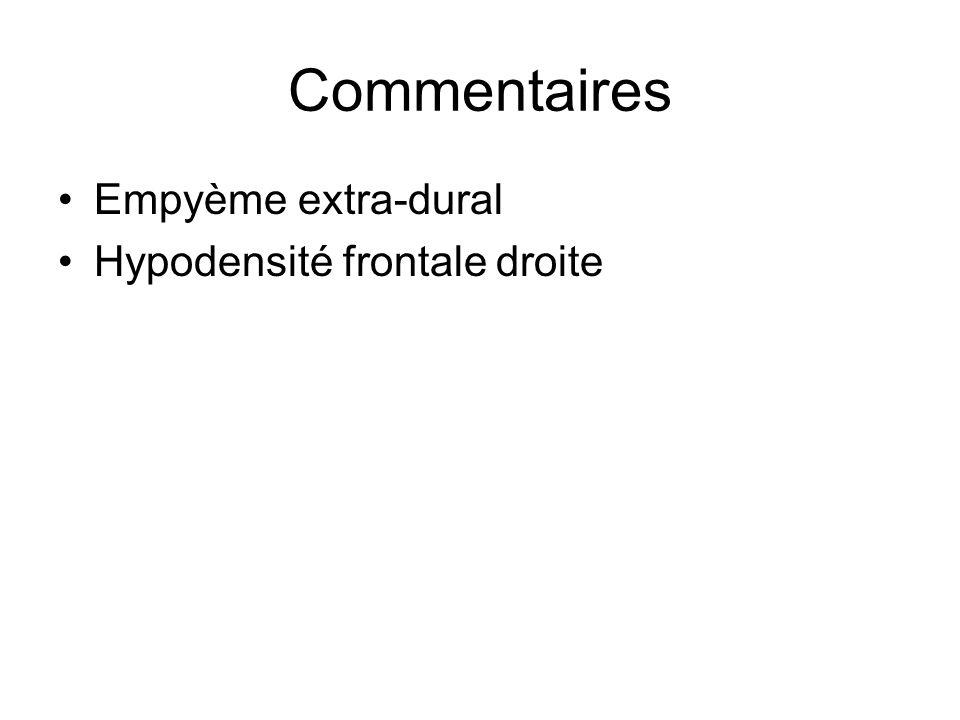 Commentaires Empyème extra-dural Hypodensité frontale droite