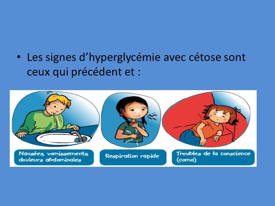 Les signes d'hyperglycémie avec cétose sont ceux qui précédent et :