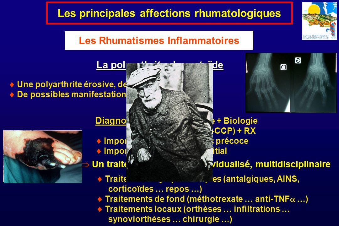 Les principales affections rhumatologiques