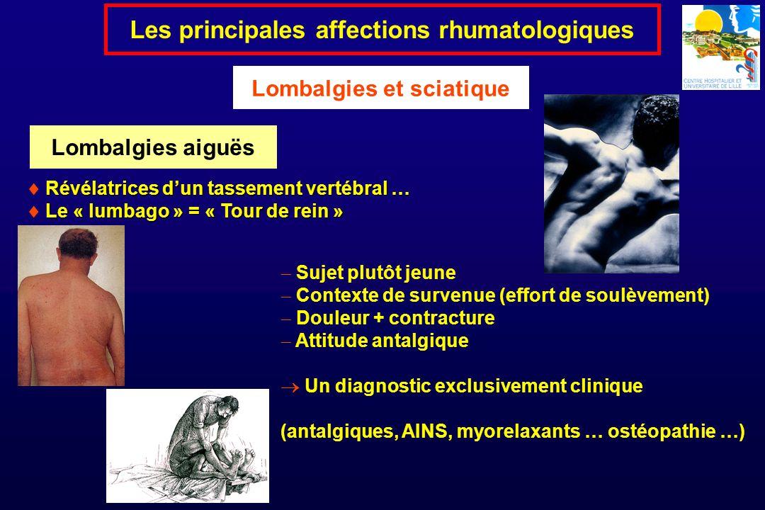 Les principales affections rhumatologiques Lombalgies et sciatique