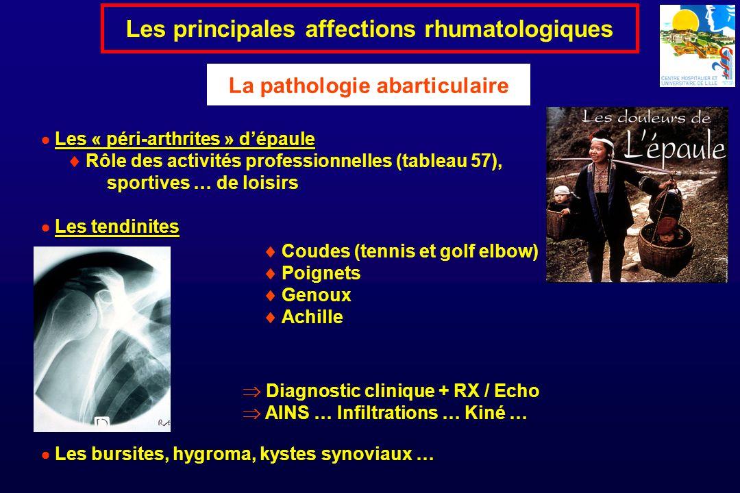 Les principales affections rhumatologiques La pathologie abarticulaire