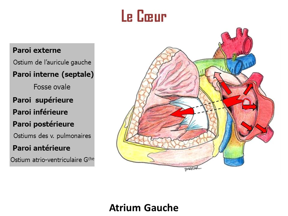 Le Cœur Atrium Gauche Paroi externe Paroi interne (septale)