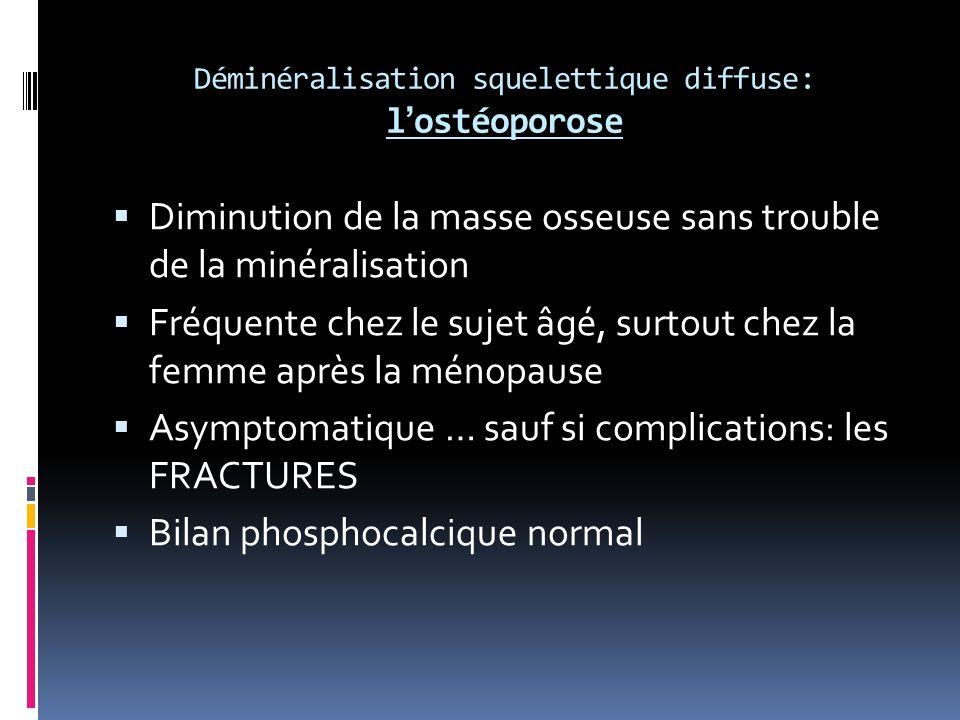 Déminéralisation squelettique diffuse: l'ostéoporose