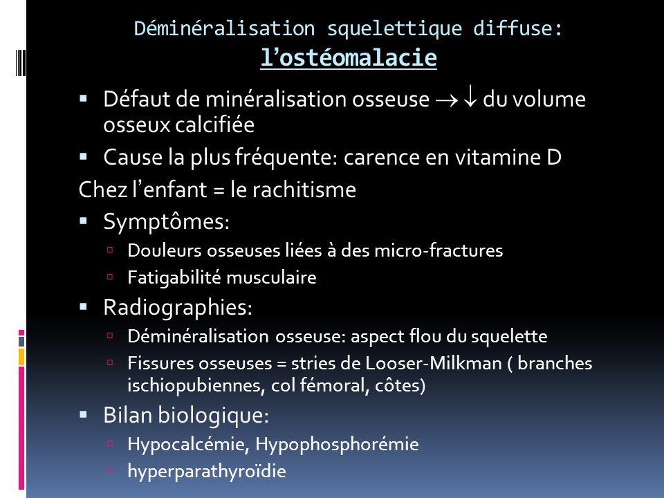Déminéralisation squelettique diffuse: l'ostéomalacie