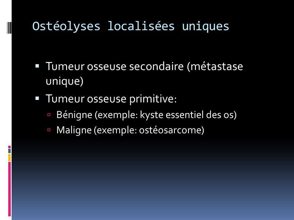 Ostéolyses localisées uniques