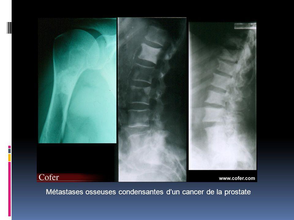 Métastases osseuses condensantes d'un cancer de la prostate