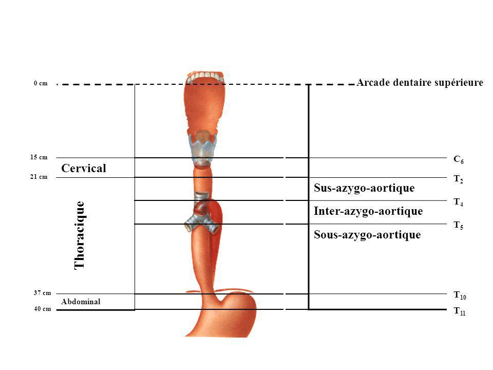 Thoracique Cervical Sus-azygo-aortique Inter-azygo-aortique