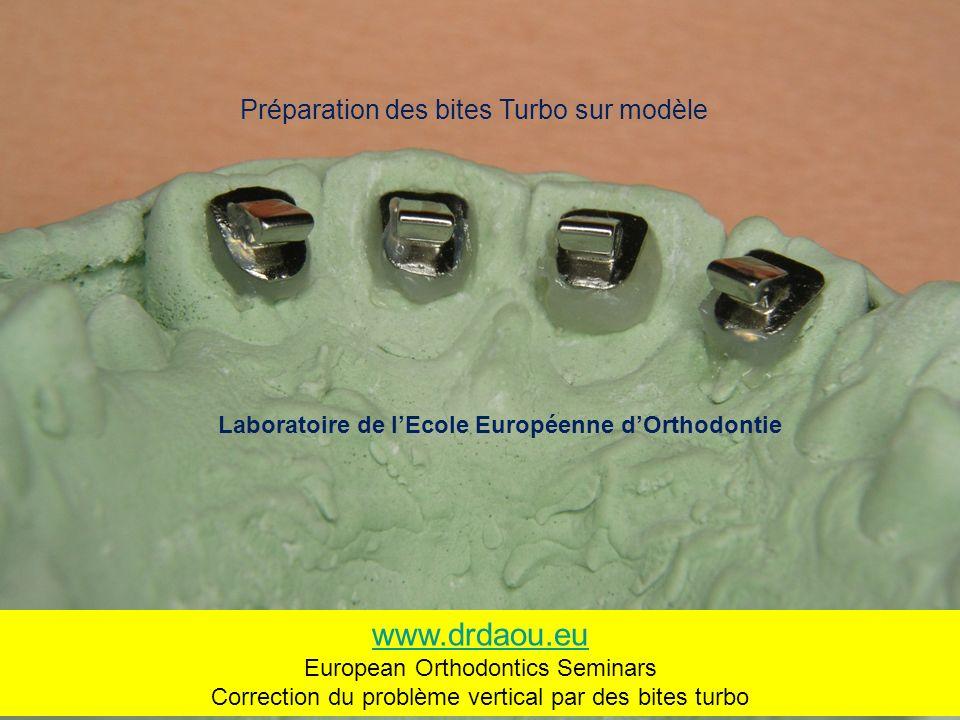 www.drdaou.eu Préparation des bites Turbo sur modèle