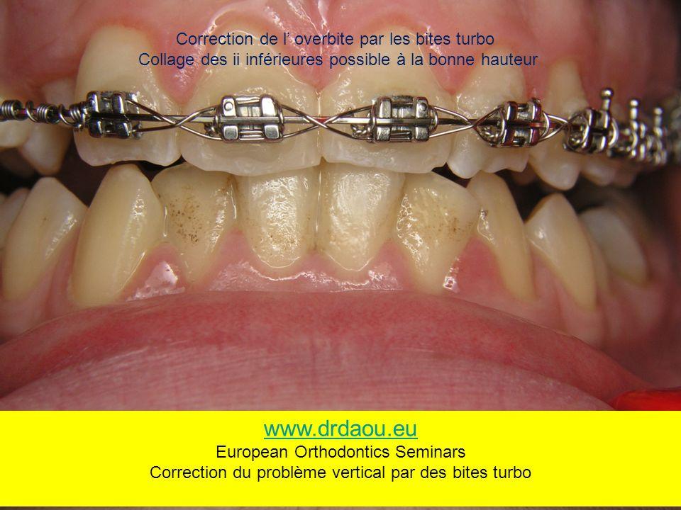www.drdaou.eu Correction de l' overbite par les bites turbo