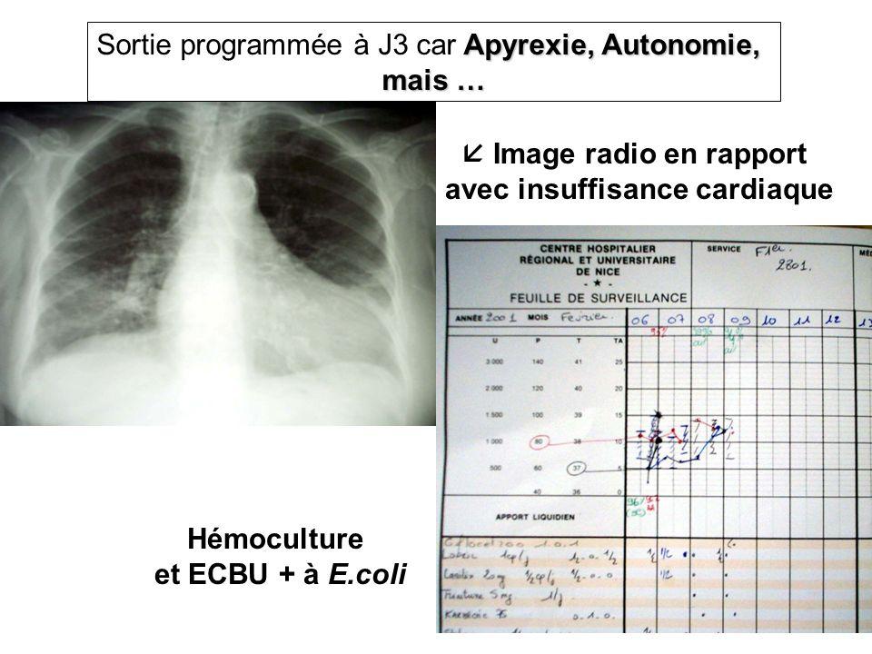  Image radio en rapport avec insuffisance cardiaque