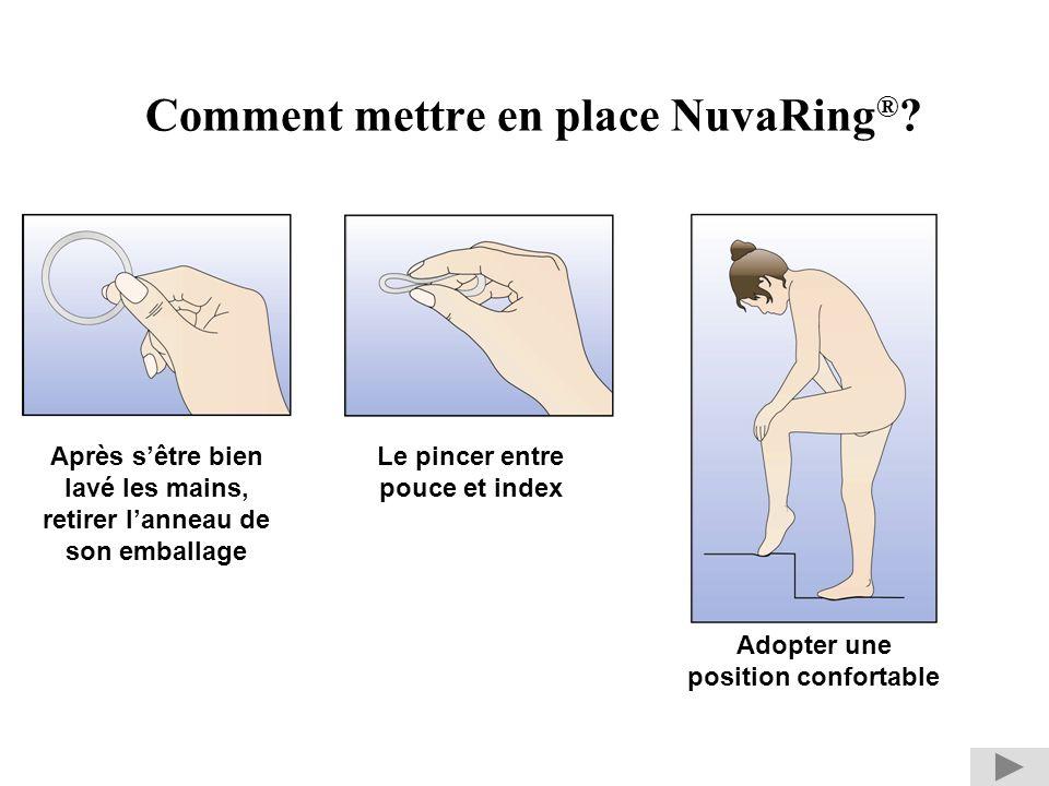 Comment mettre en place NuvaRing®