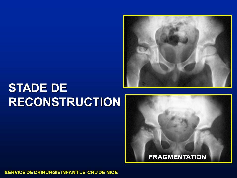 STADE DE RECONSTRUCTION FRAGMENTATION