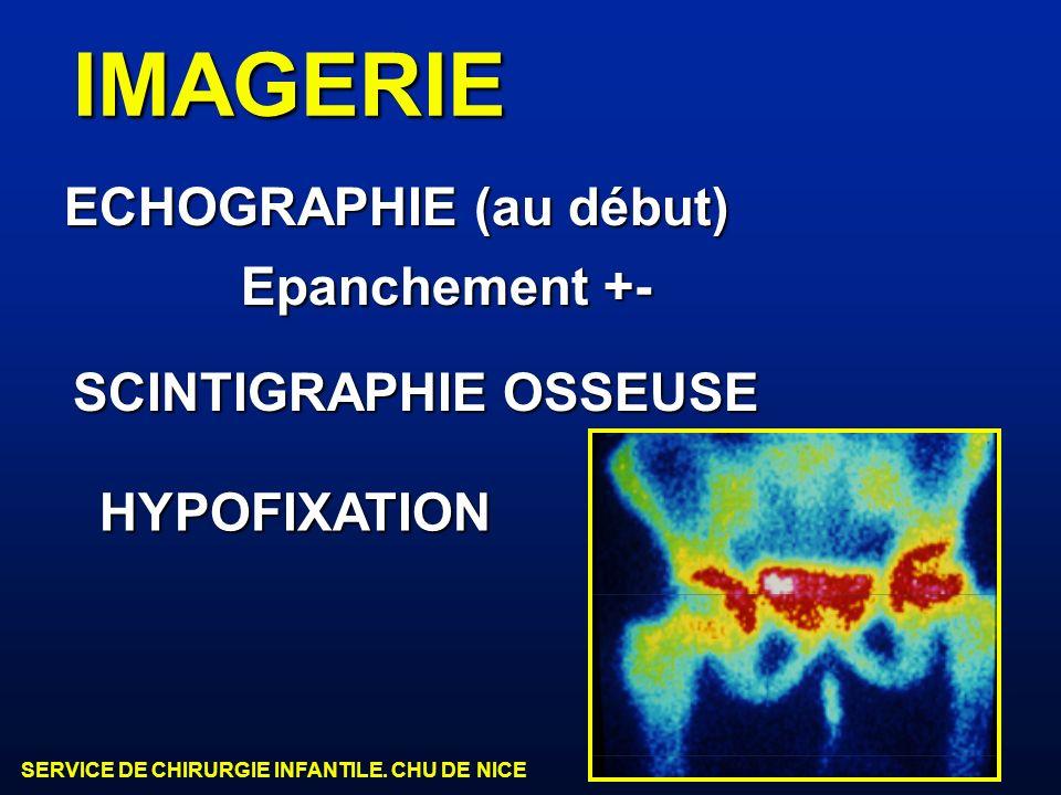 IMAGERIE ECHOGRAPHIE (au début) Epanchement +- SCINTIGRAPHIE OSSEUSE