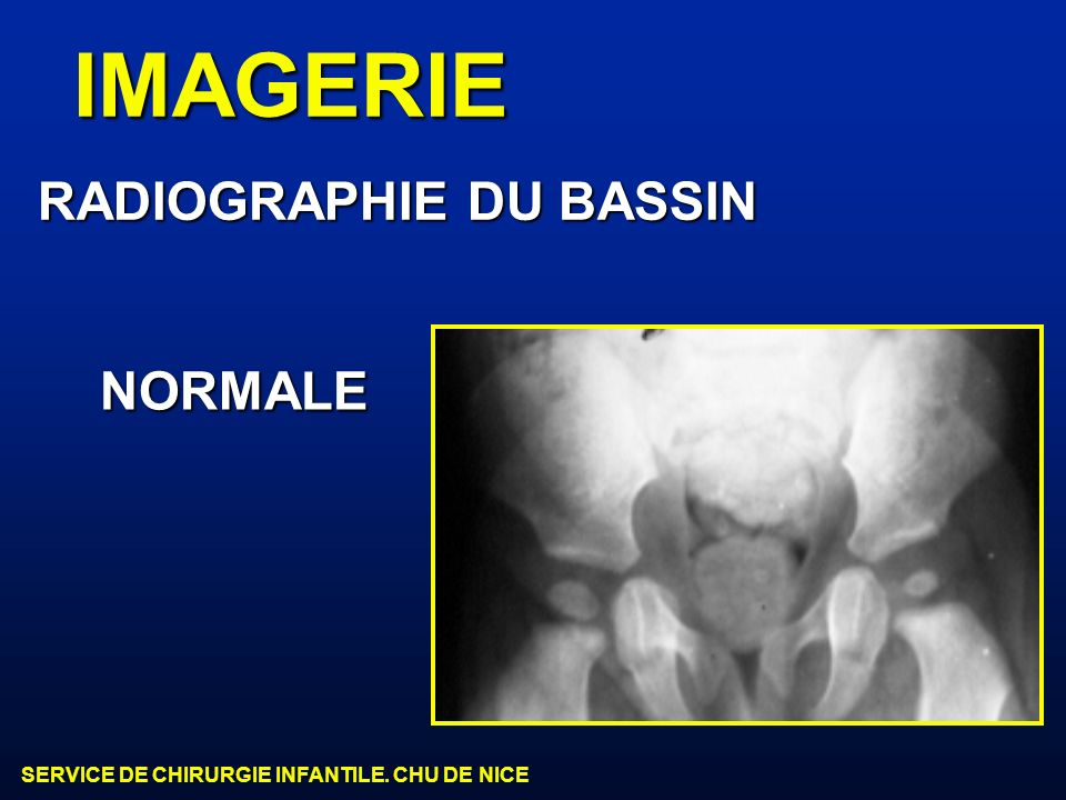 IMAGERIE RADIOGRAPHIE DU BASSIN NORMALE
