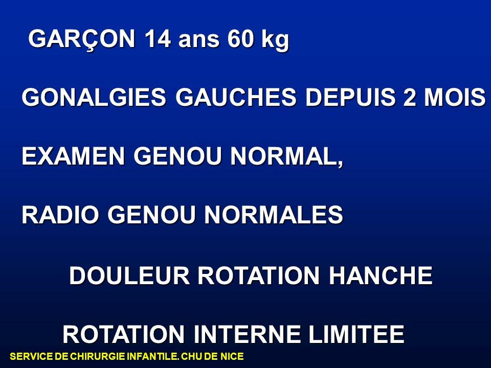 GARÇON 14 ans 60 kg GONALGIES GAUCHES DEPUIS 2 MOIS. EXAMEN GENOU NORMAL, RADIO GENOU NORMALES. DOULEUR ROTATION HANCHE.