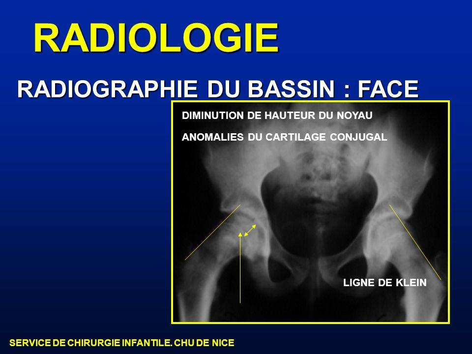 RADIOLOGIE RADIOGRAPHIE DU BASSIN : FACE