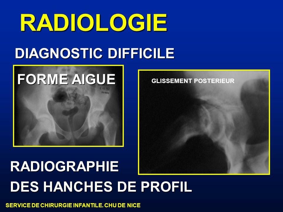 RADIOLOGIE DIAGNOSTIC DIFFICILE FORME AIGUE RADIOGRAPHIE