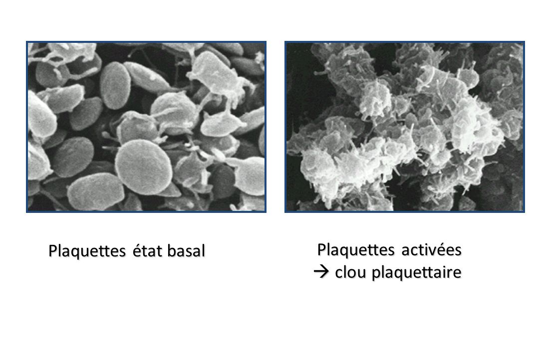 Plaquettes état basal Plaquettes activées  clou plaquettaire