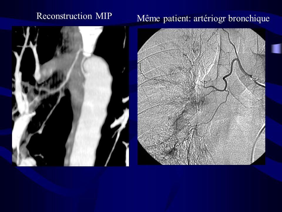 Reconstruction MIP Même patient: artériogr bronchique