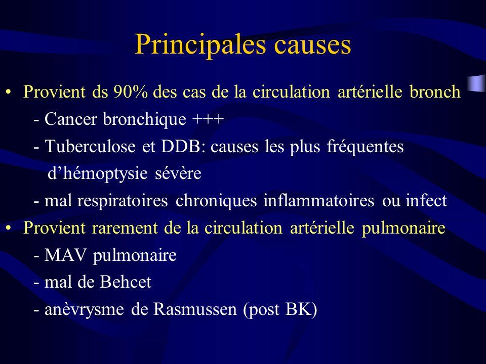 Principales causes Provient ds 90% des cas de la circulation artérielle bronch. - Cancer bronchique +++