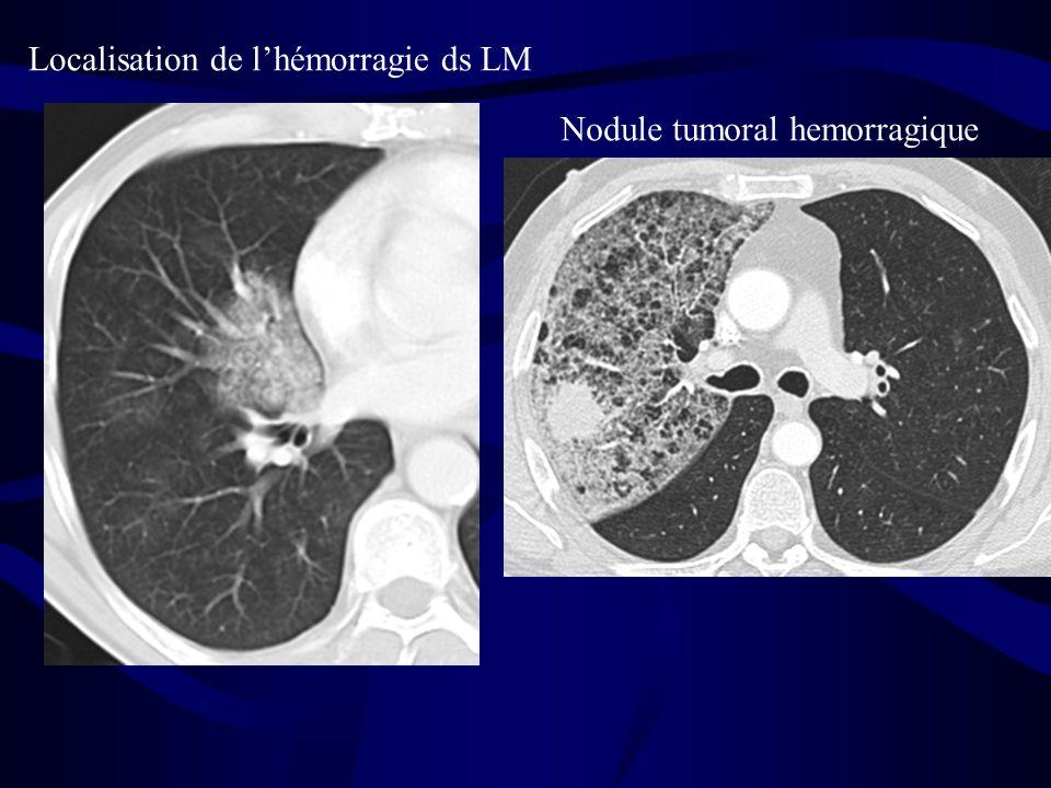 Localisation de l'hémorragie ds LM