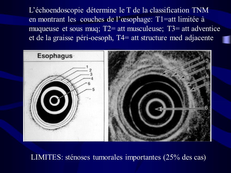 L'échoendoscopie détermine le T de la classification TNM