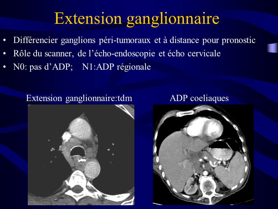 Extension ganglionnaire