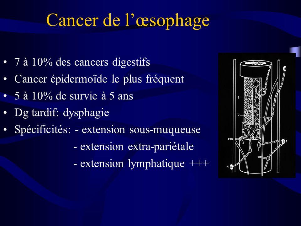 Cancer de l'œsophage 7 à 10% des cancers digestifs