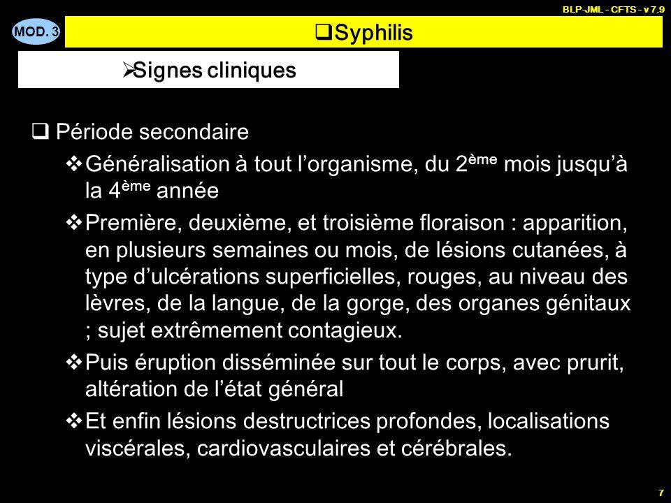Syphilis Signes cliniques