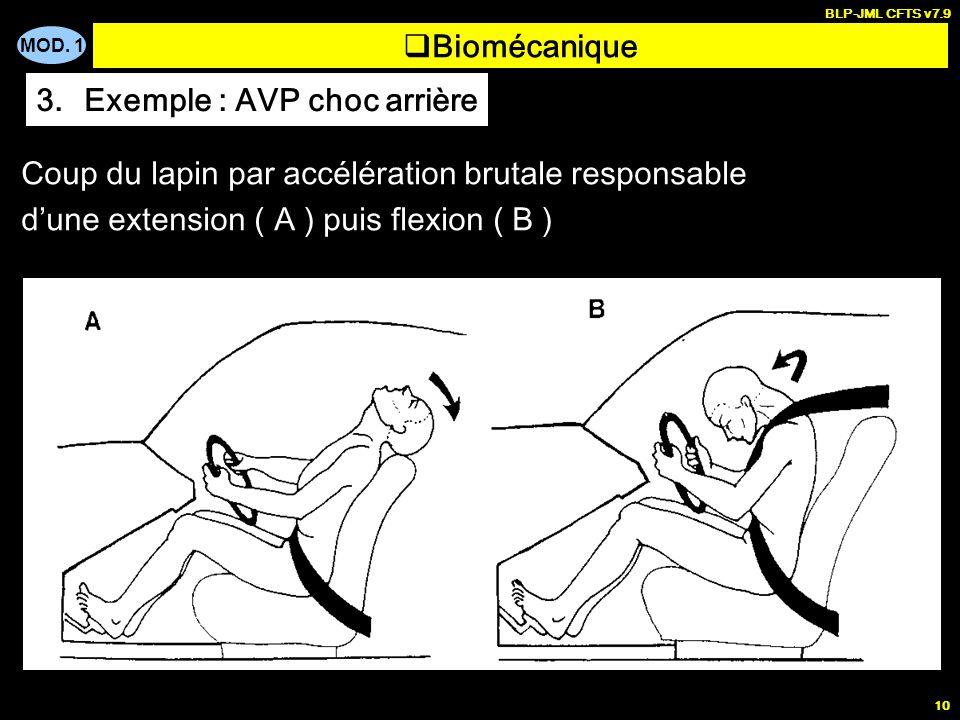 Exemple : AVP choc arrière
