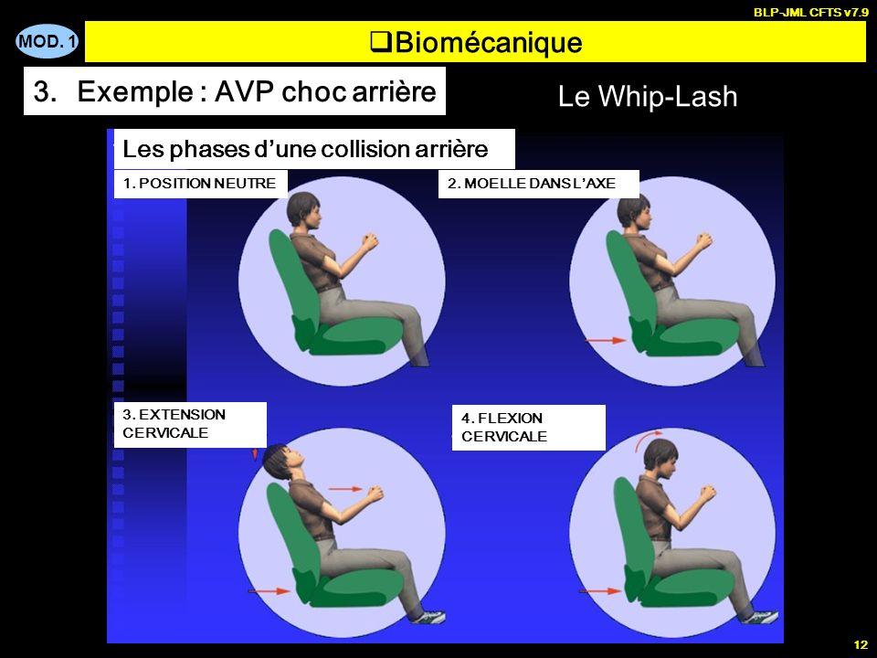 Exemple : AVP choc arrière Le Whip-Lash