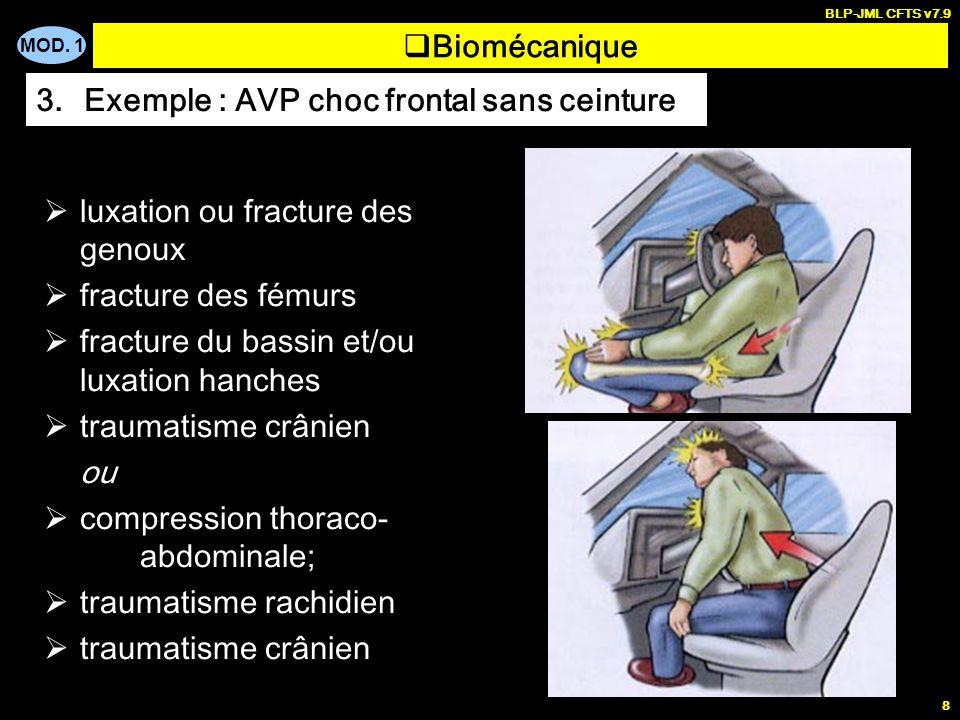 Exemple : AVP choc frontal sans ceinture