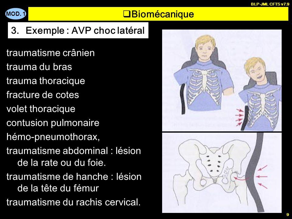 Exemple : AVP choc latéral