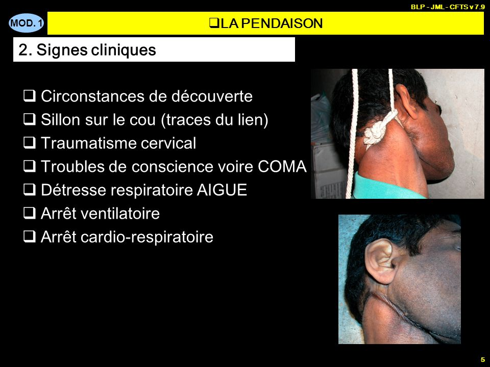 Circonstances de découverte Sillon sur le cou (traces du lien)