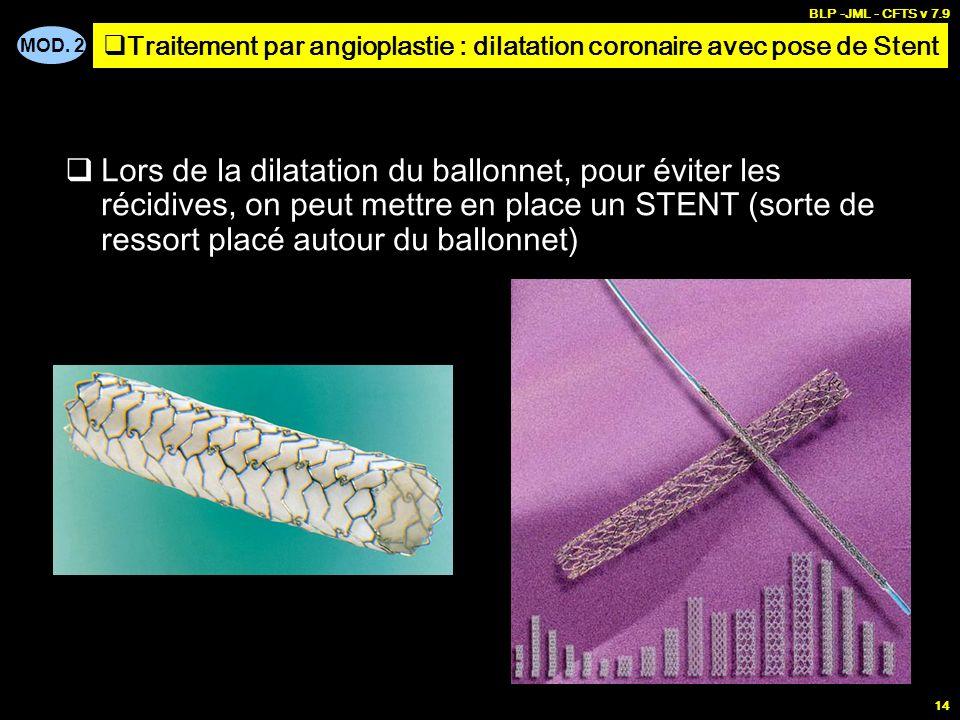Traitements de la stenose coronaire coronaropathie ppt - Traitement pour eviter les fausses couches ...