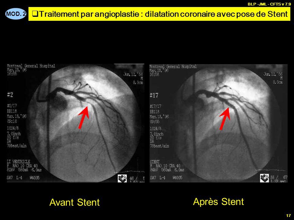 Traitement par angioplastie : dilatation coronaire avec pose de Stent