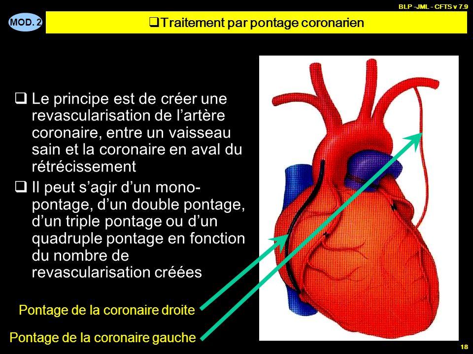 Traitement par pontage coronarien