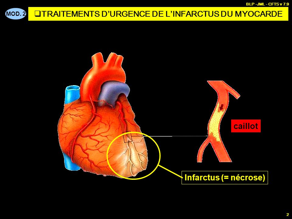 TRAITEMENTS D'URGENCE DE L'INFARCTUS DU MYOCARDE