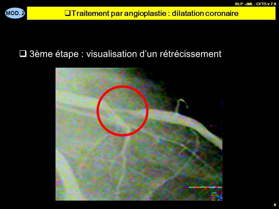 Traitement par angioplastie : dilatation coronaire
