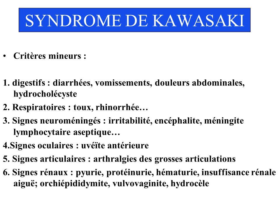 SYNDROME DE KAWASAKI Critères mineurs :