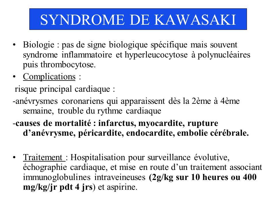 SYNDROME DE KAWASAKI