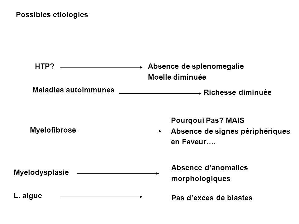 Possibles etiologies HTP Absence de splenomegalie. Moelle diminuée. Maladies autoimmunes. Richesse diminuée.