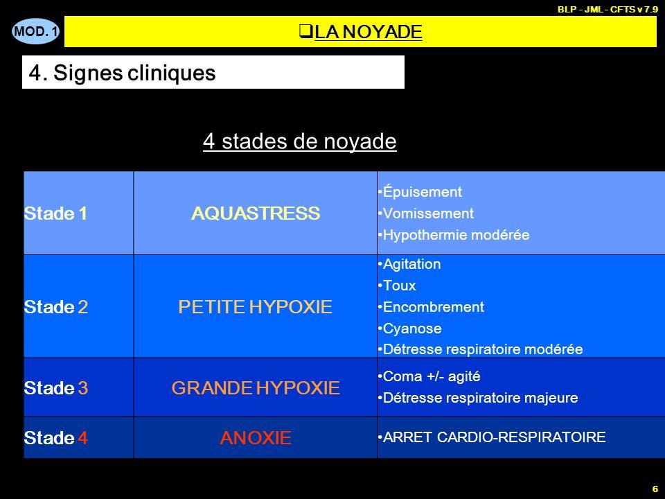 4. Signes cliniques 4 stades de noyade LA NOYADE Stade 1 AQUASTRESS