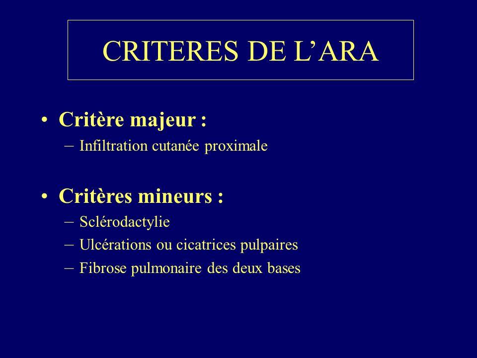 CRITERES DE L'ARA Critère majeur : Critères mineurs :