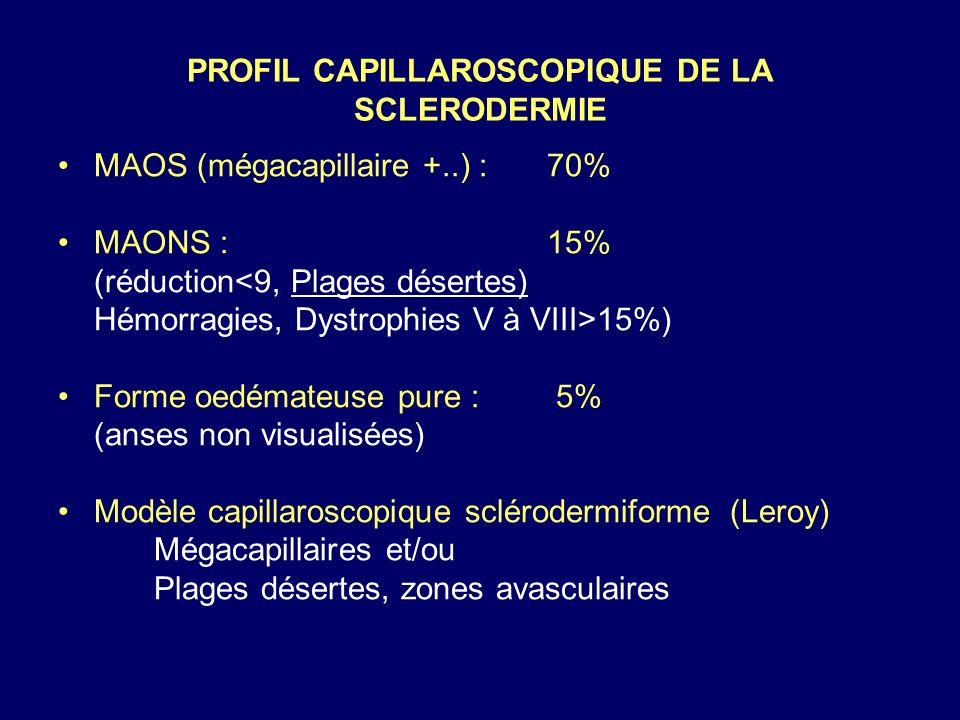 PROFIL CAPILLAROSCOPIQUE DE LA SCLERODERMIE
