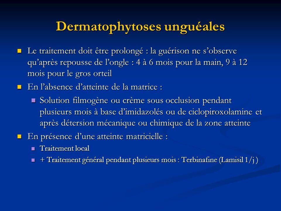 Dermatophytoses unguéales