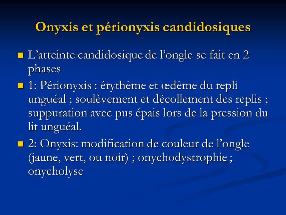 Onyxis et périonyxis candidosiques