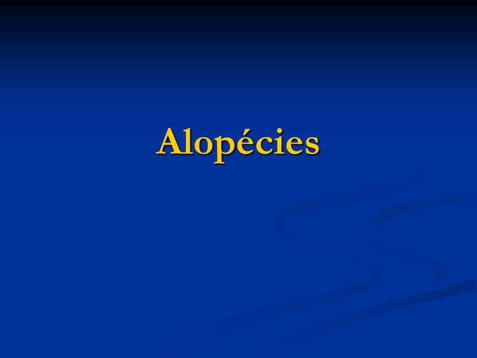Alopécies