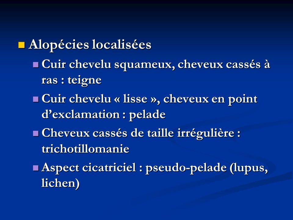 Alopécies localisées Cuir chevelu squameux, cheveux cassés à ras : teigne. Cuir chevelu « lisse », cheveux en point d'exclamation : pelade.