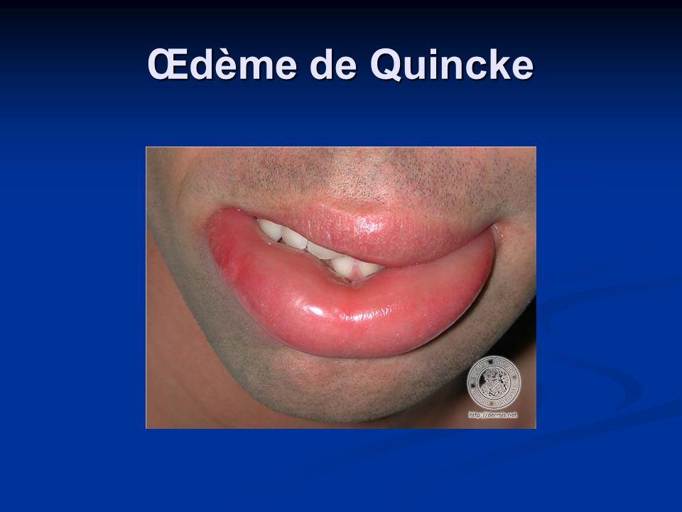 Œdème de Quincke